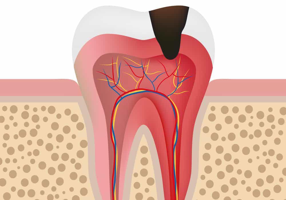 inner-tooth cartoon